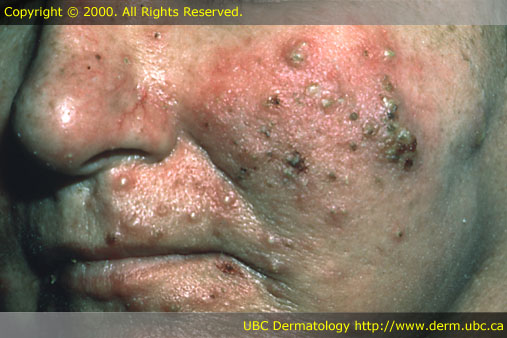 what is rosacea #10