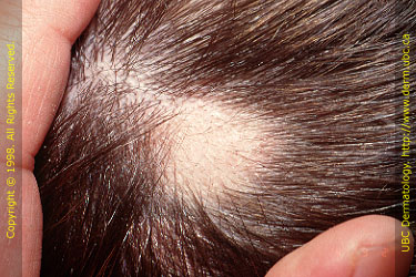 steroid injections scalp psoriasis