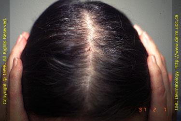 Aga alopecia