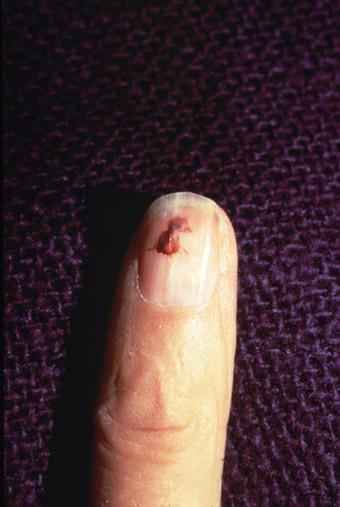 Splinter hemorrhages m...