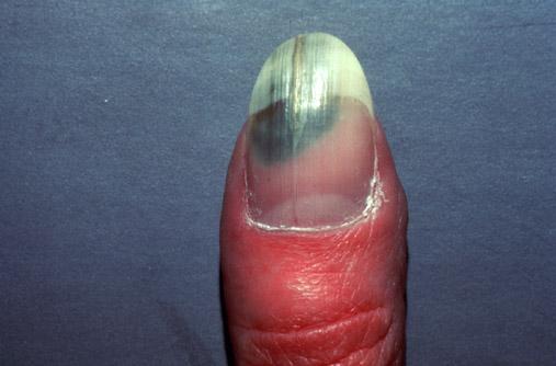 Nail disease - Wikipedia, the free encyclopedia