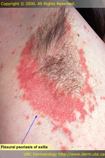 inverted psoriasis