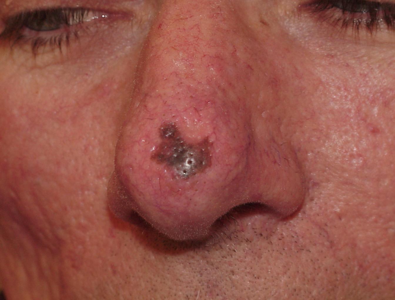 melanoma pictures #11