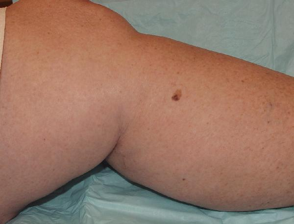 Melanoma pictures – Mole bank | SkinVision