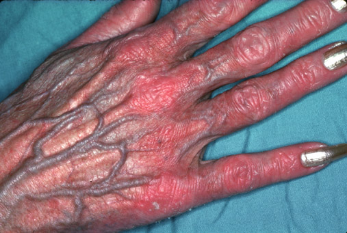 steroid skin atrophy injections